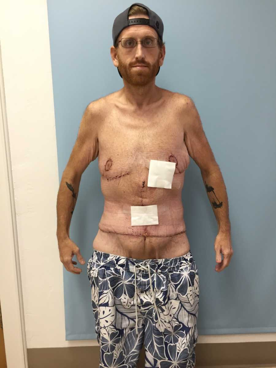 I knew I was going to die': 500-pound man loses a whopping 350