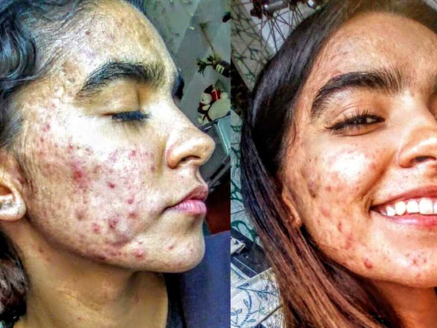 Acne Scars Love What Matters