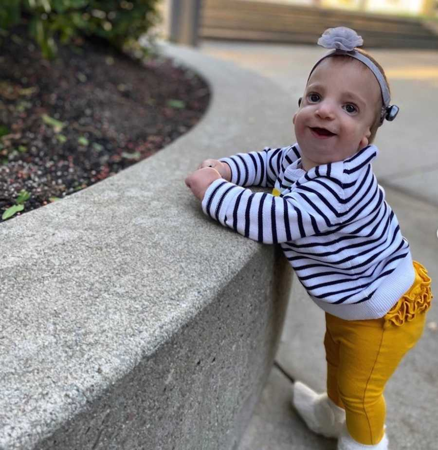 an infant with Treacher Collins Syndrome