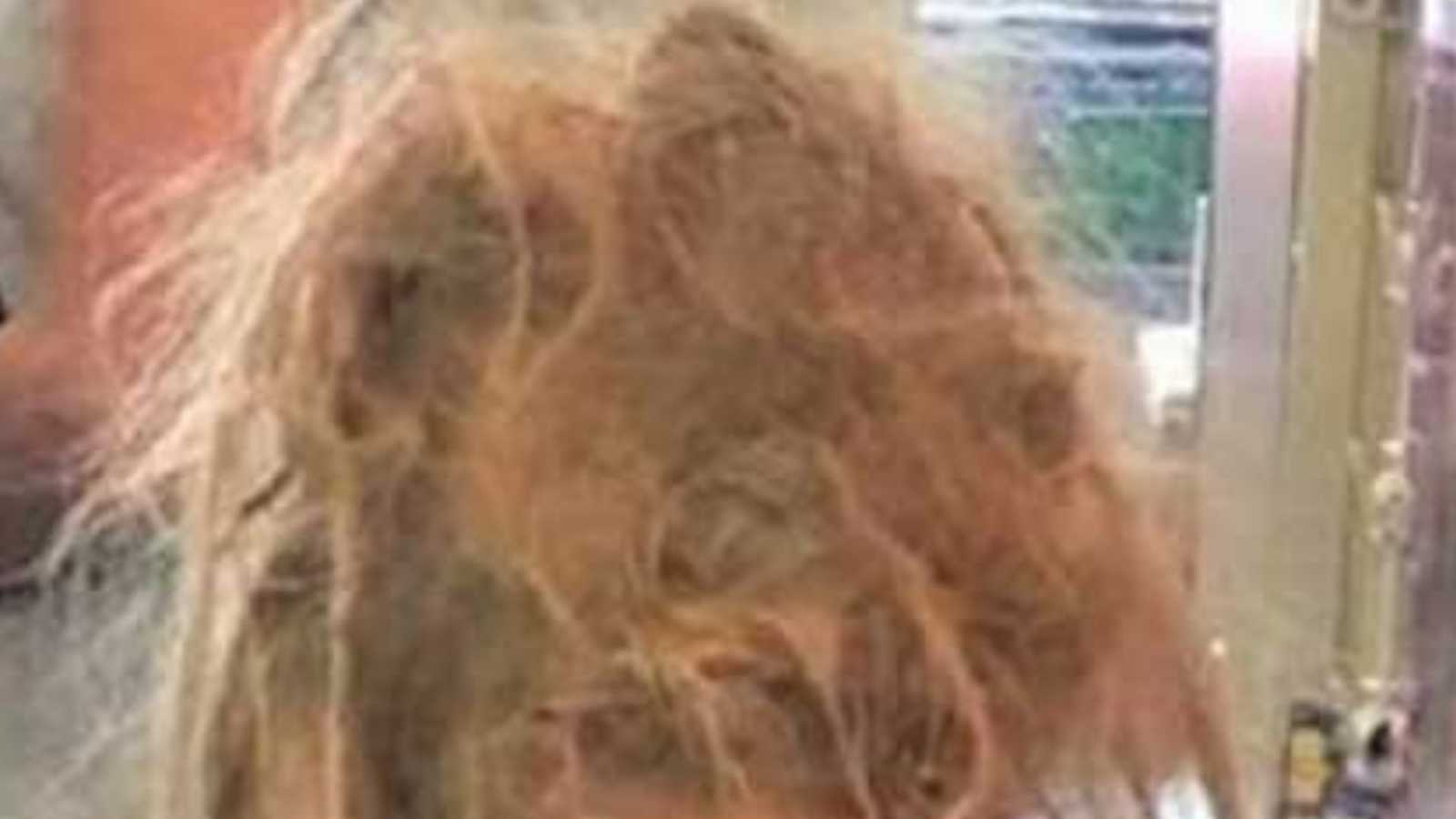 Zoomed in photo of a young girl's wild, matted hair