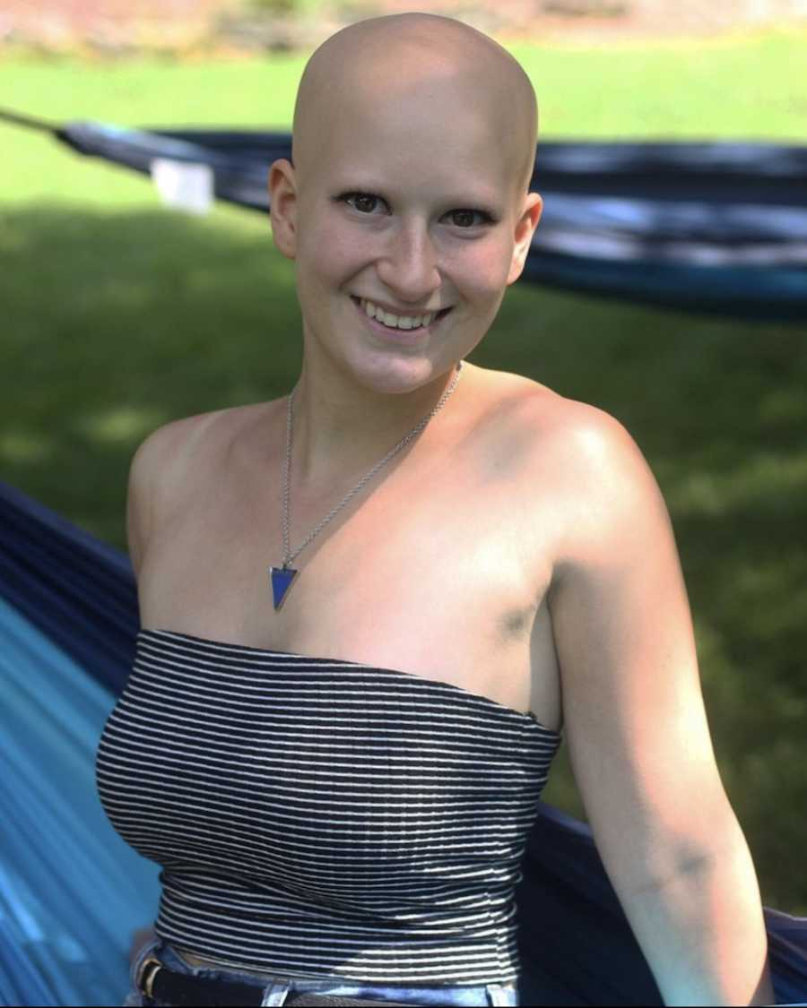 Woman with alopecia smiling in the sun