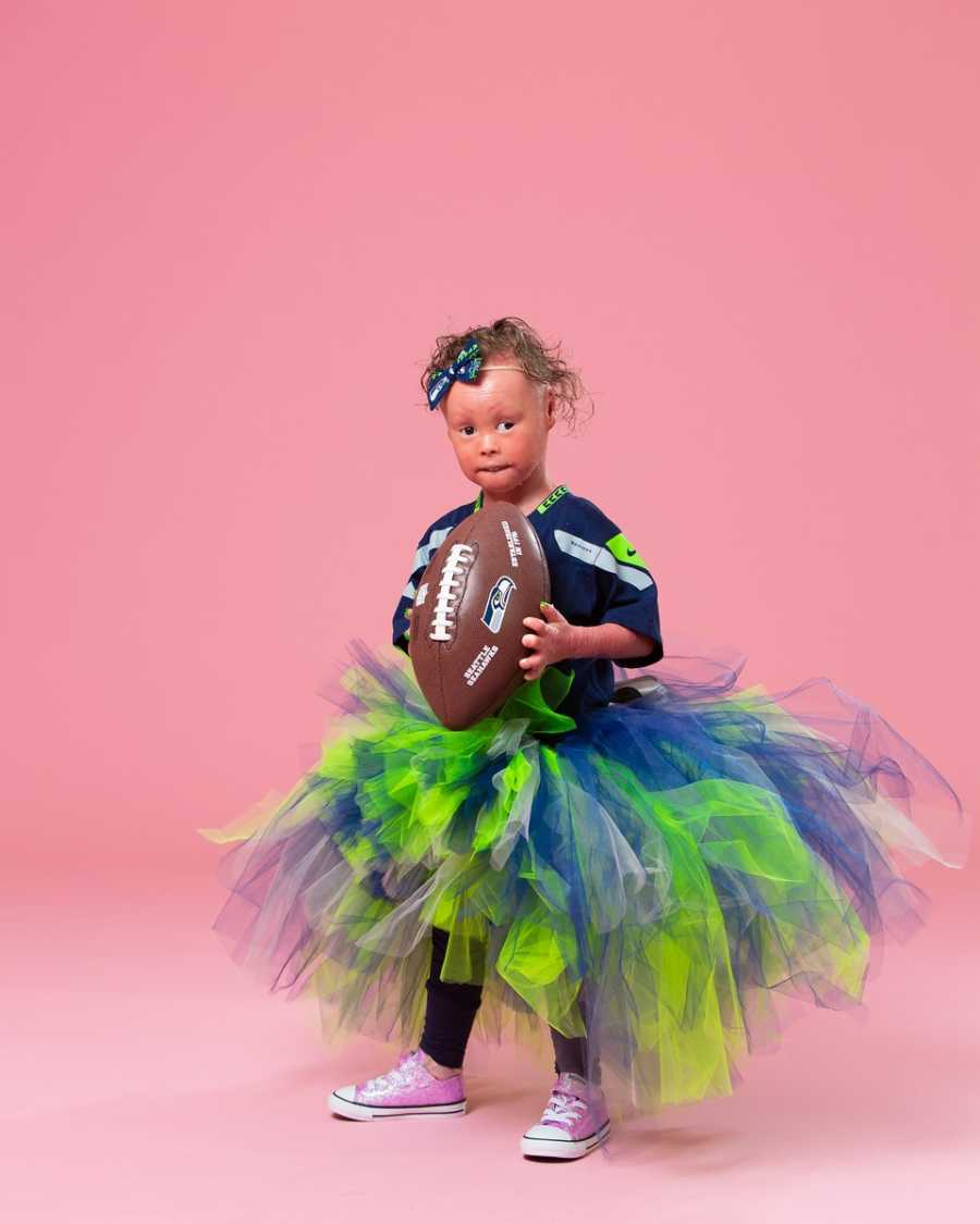 Model with Harlequin Ichthyosis poses for a photoshoot in Seattle Seahawks gear