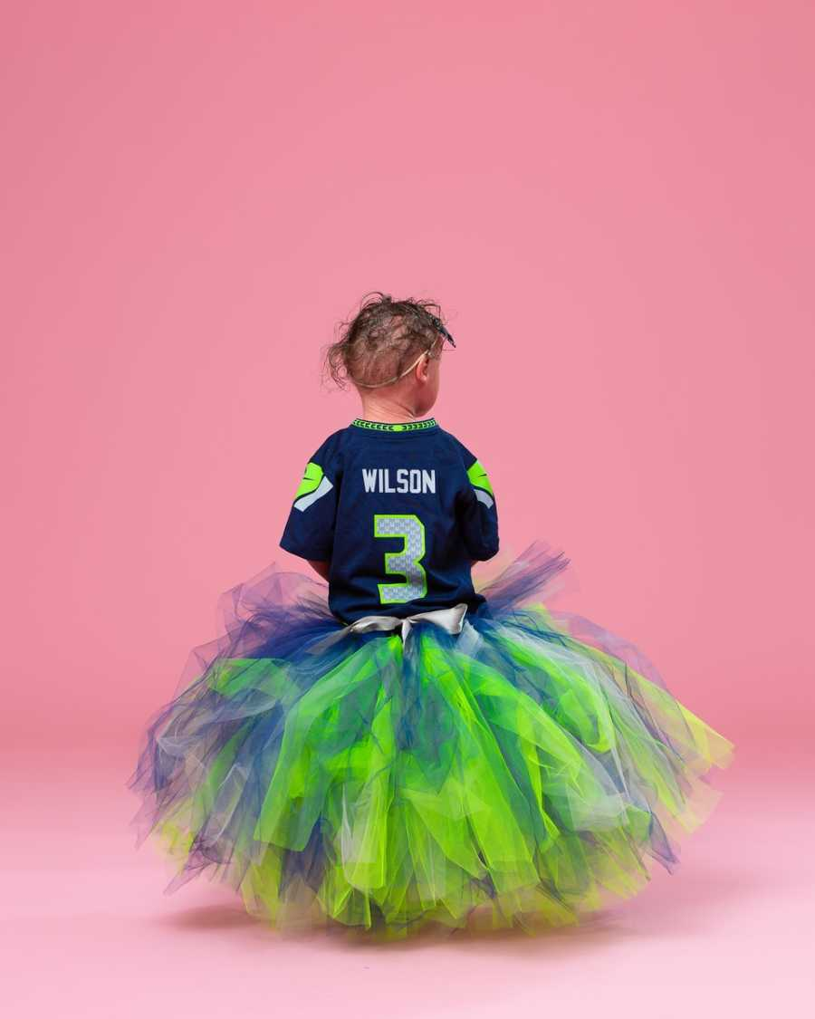 Model with Harlequin Ichthyosis shows off football jersey in a photoshoot with Seattle Seahawks gear