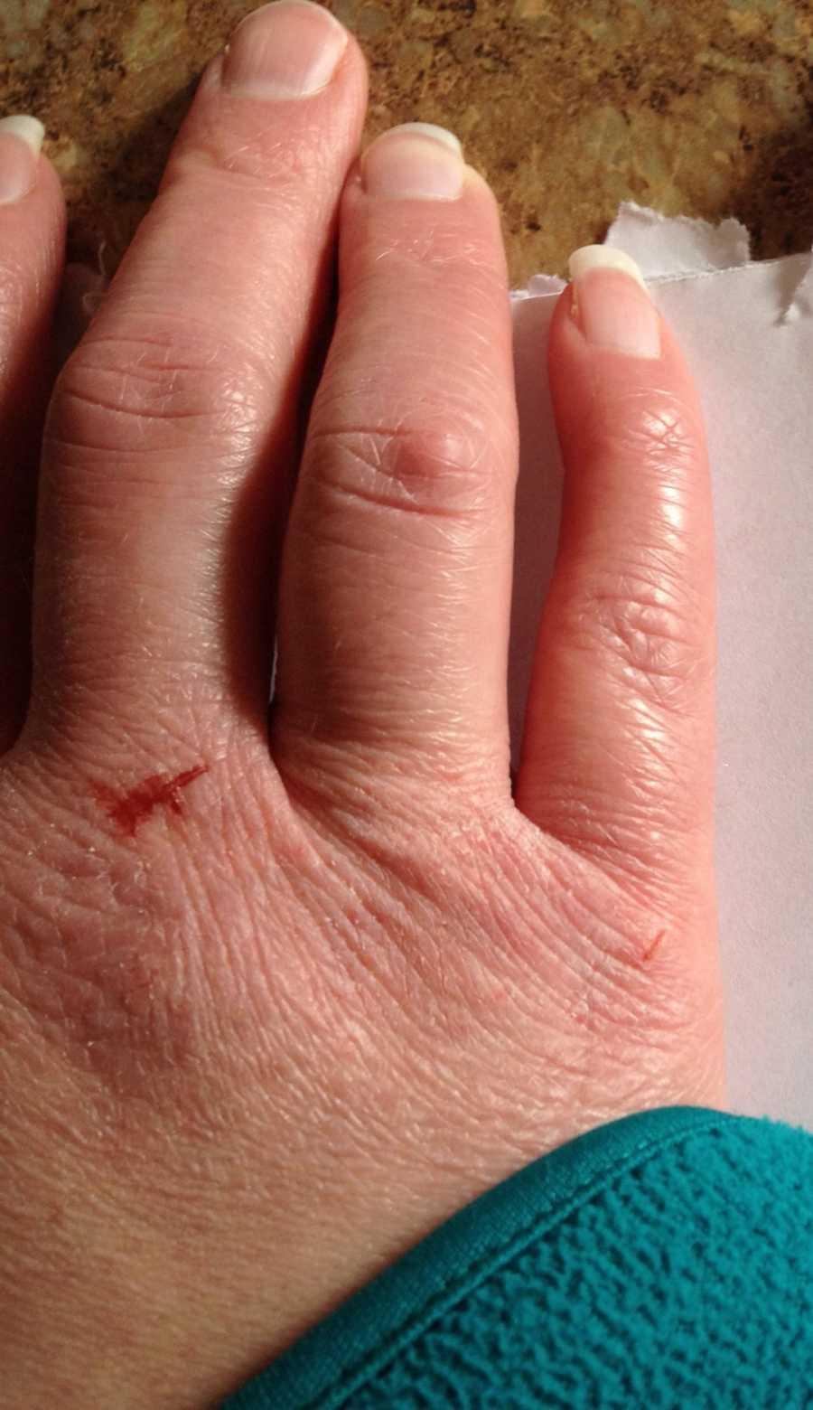 lupus hands in winter