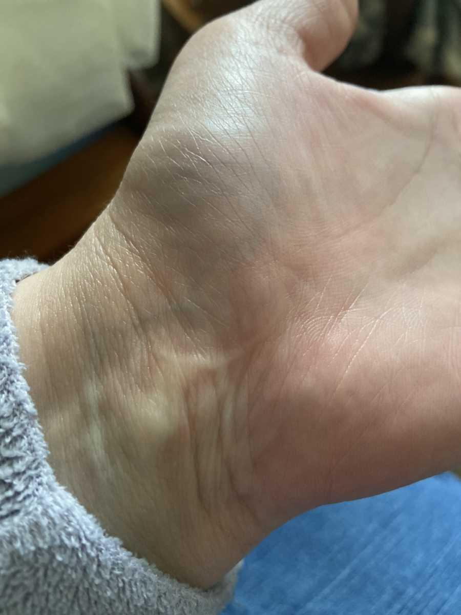 wrist after surgery