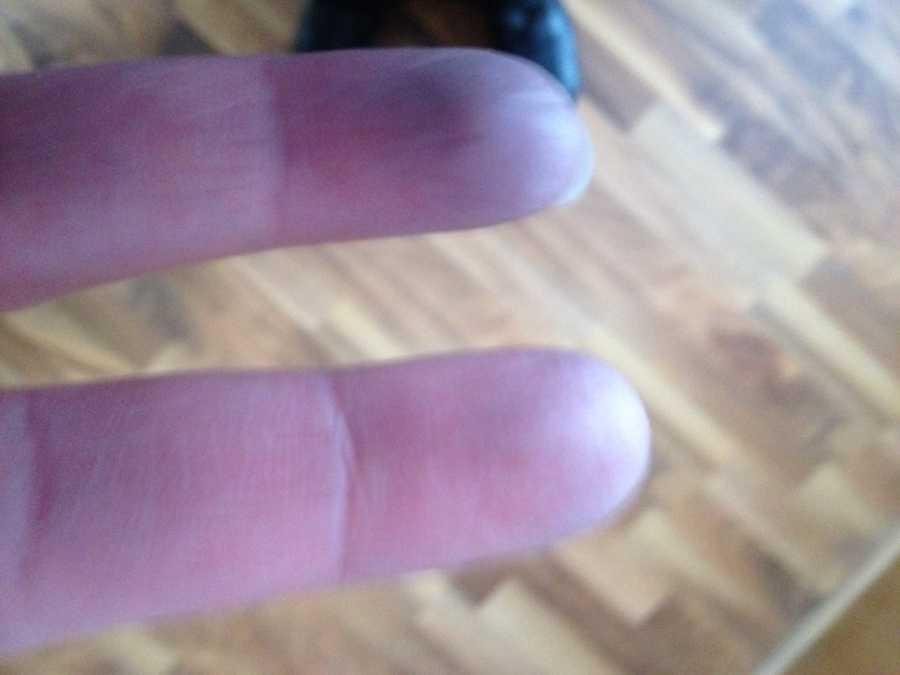 Raynauds fingers