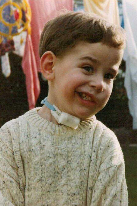 Boy with tracheostomy smiling