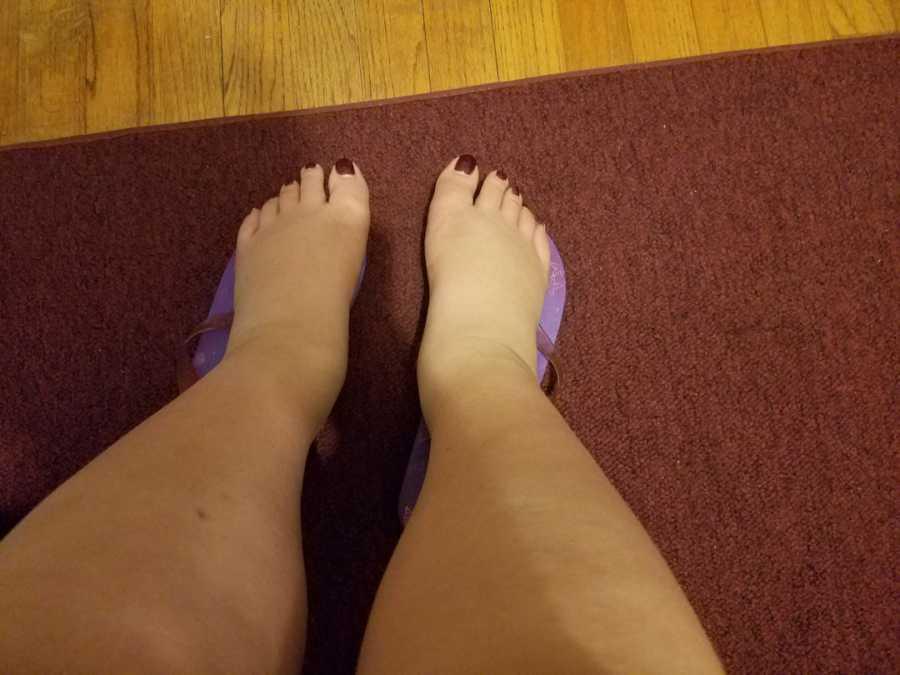 lupus - swollen feet