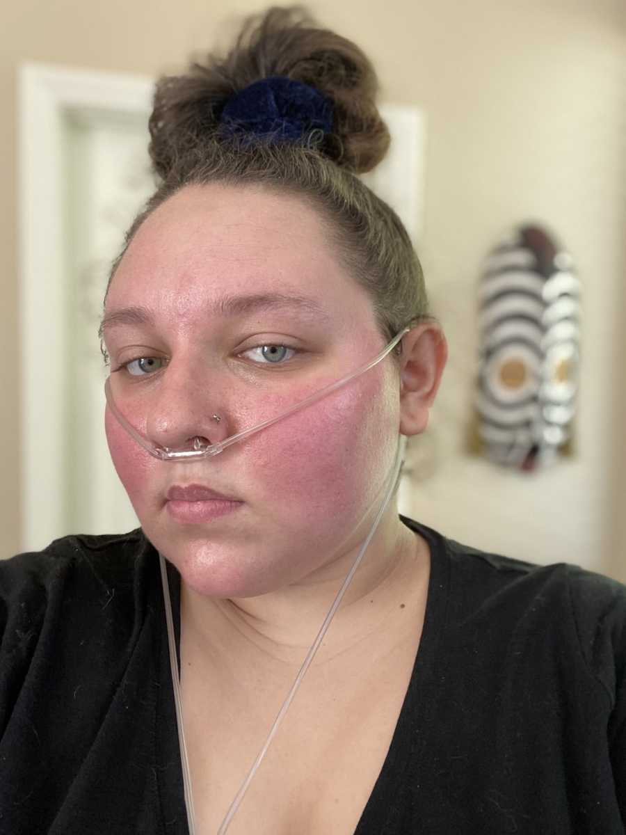 girl with malar lupus rash and breathing tube
