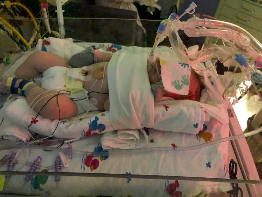baby in NICU with tubes