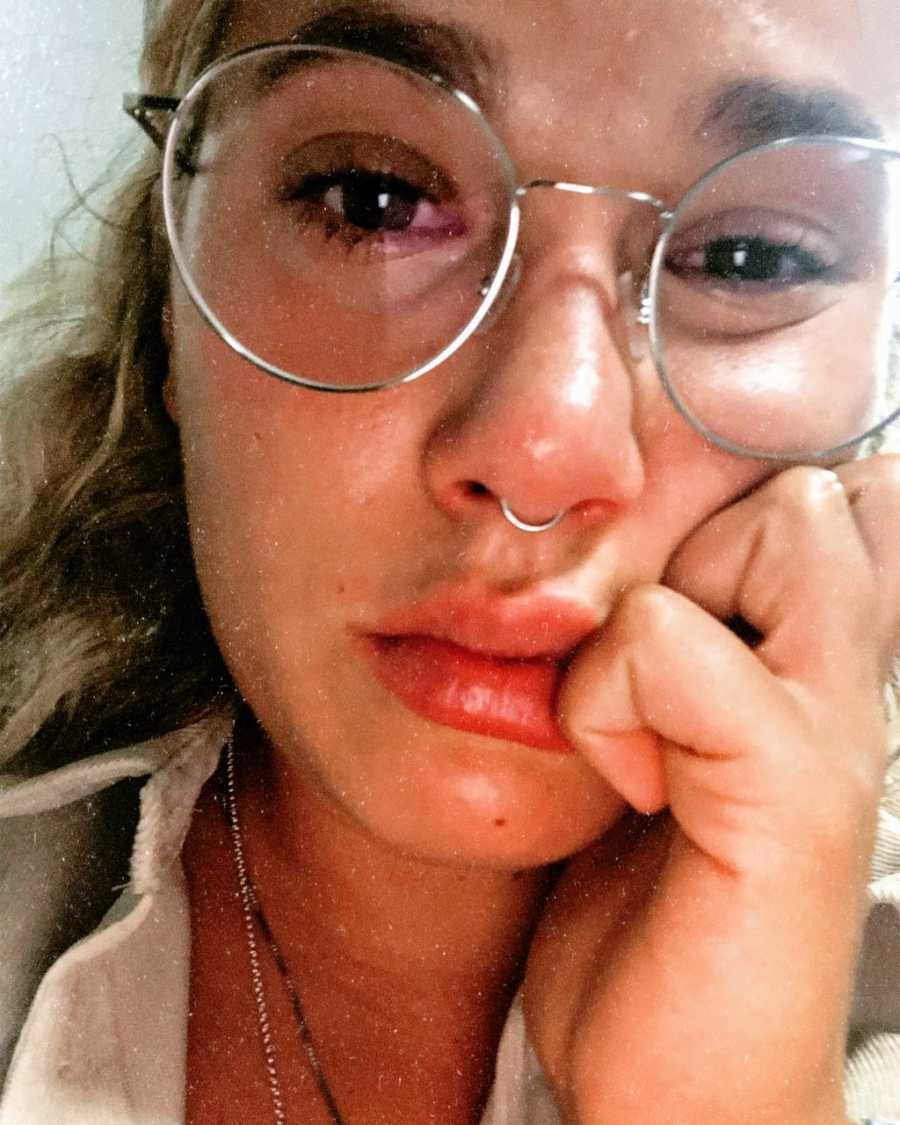 Woman with Epstein-Barr Virus takes a serious selfie while crying