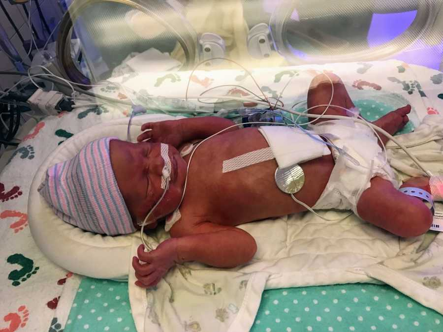 A premature baby boy with wires attached in the NICU