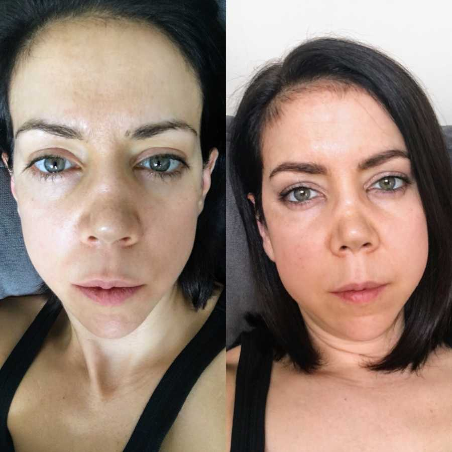 Side by side photo of same woman showing facial differences