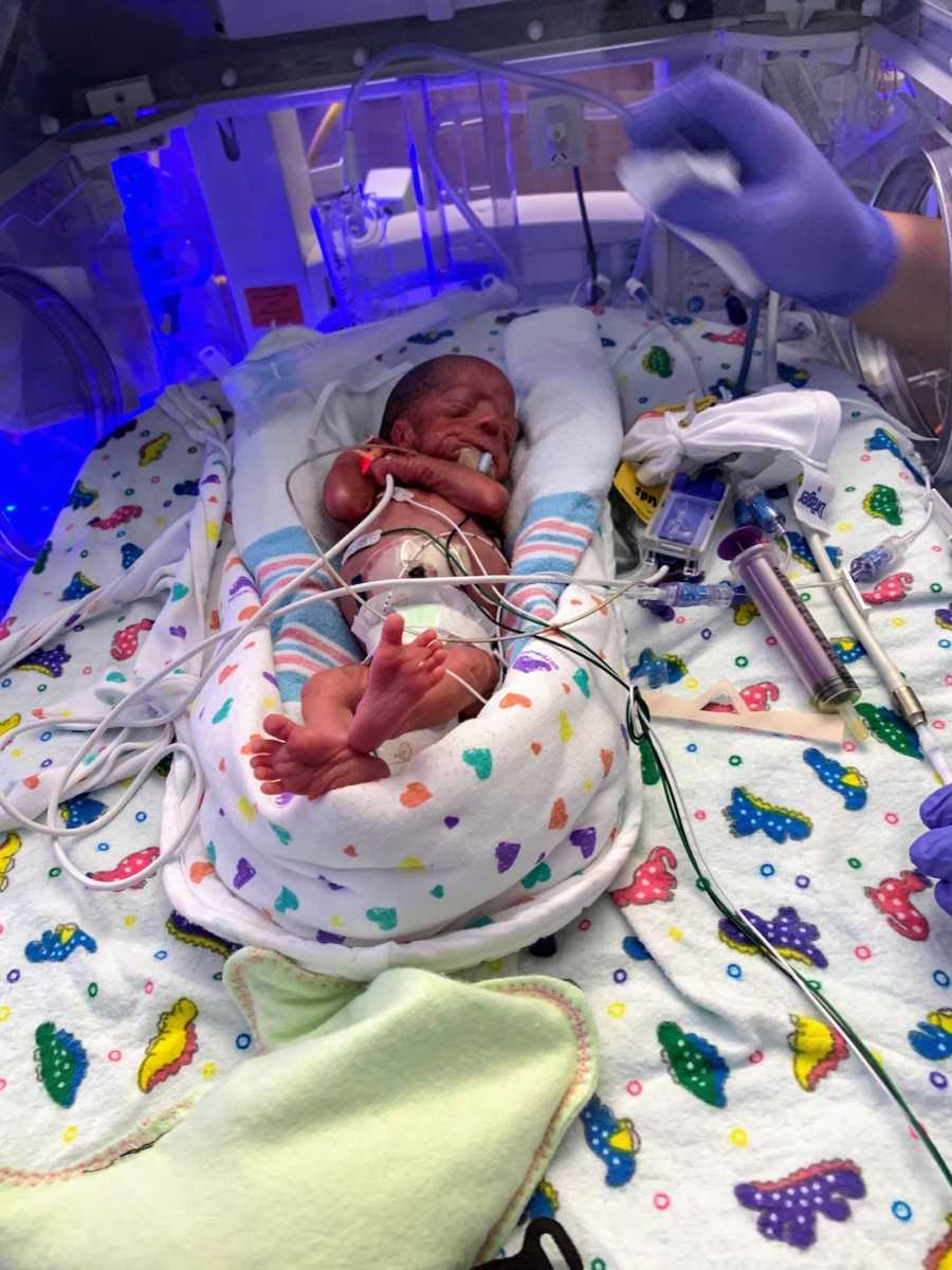 Premature baby in incubator wrapped in blankets