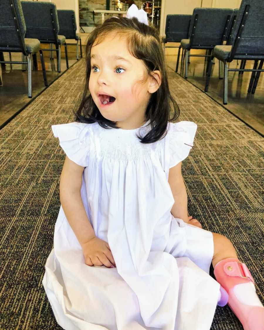 A girl with Down Syndrome looks surprised