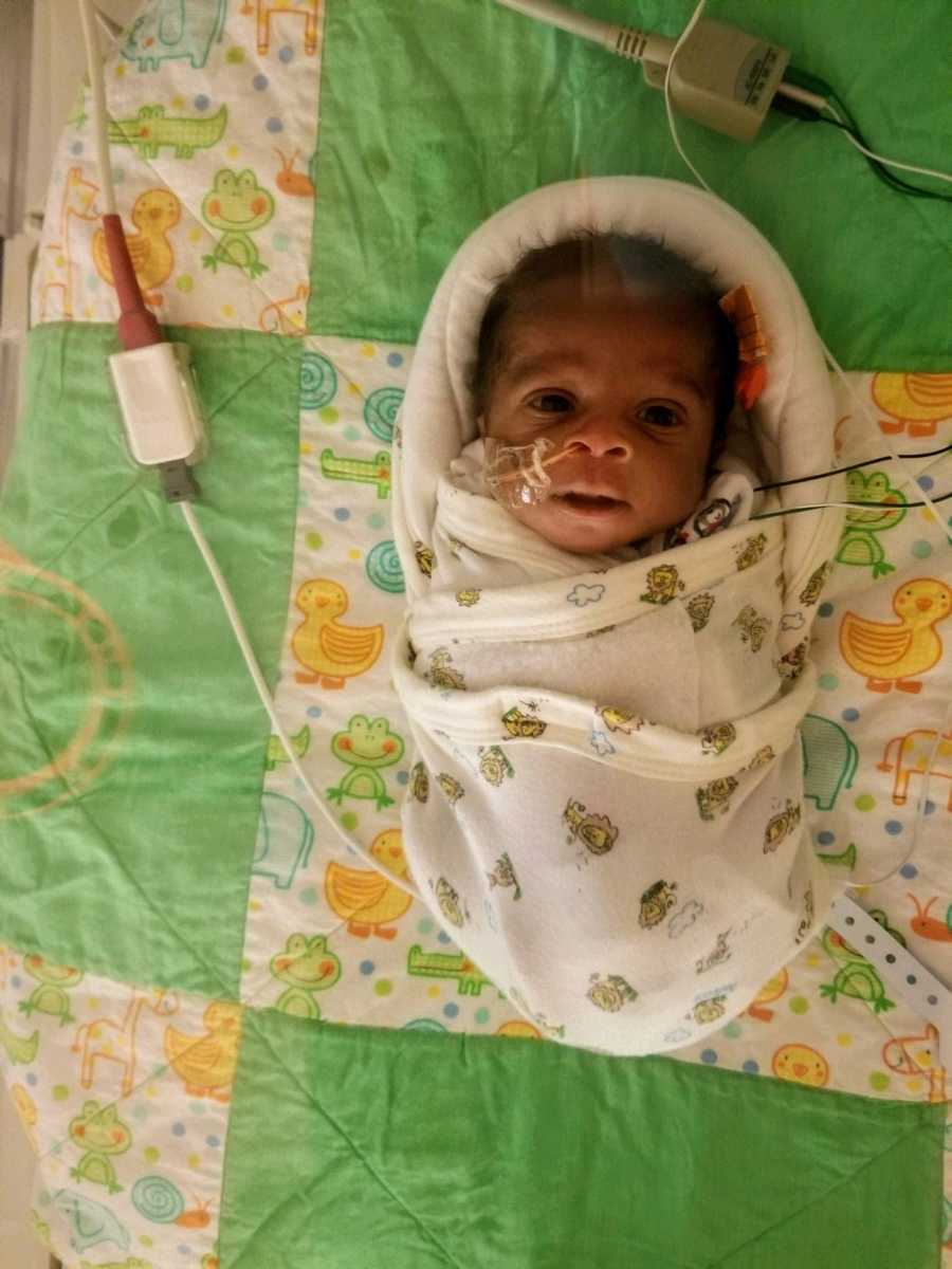 A premature baby boy swaddled with tubes and wires connected