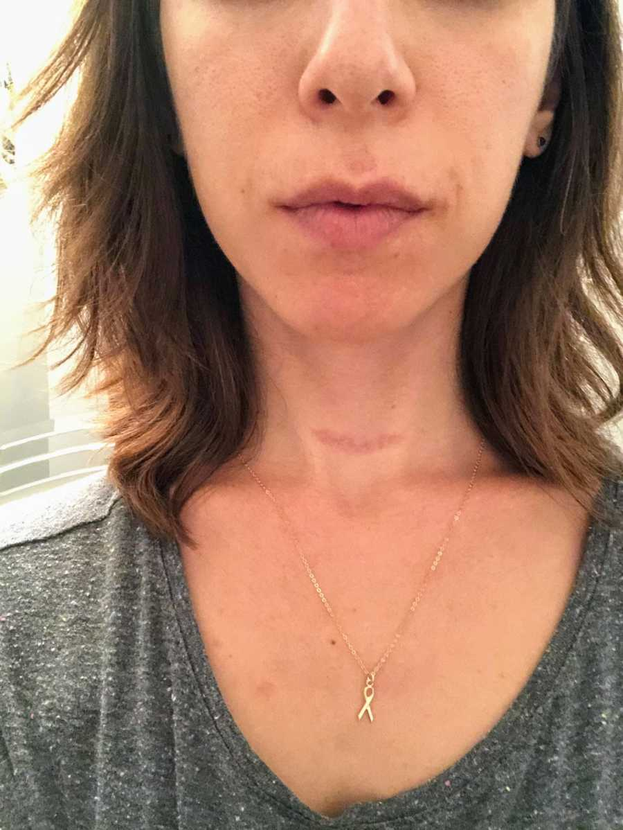 Woman's throat with scar and gold cancer awareness necklace