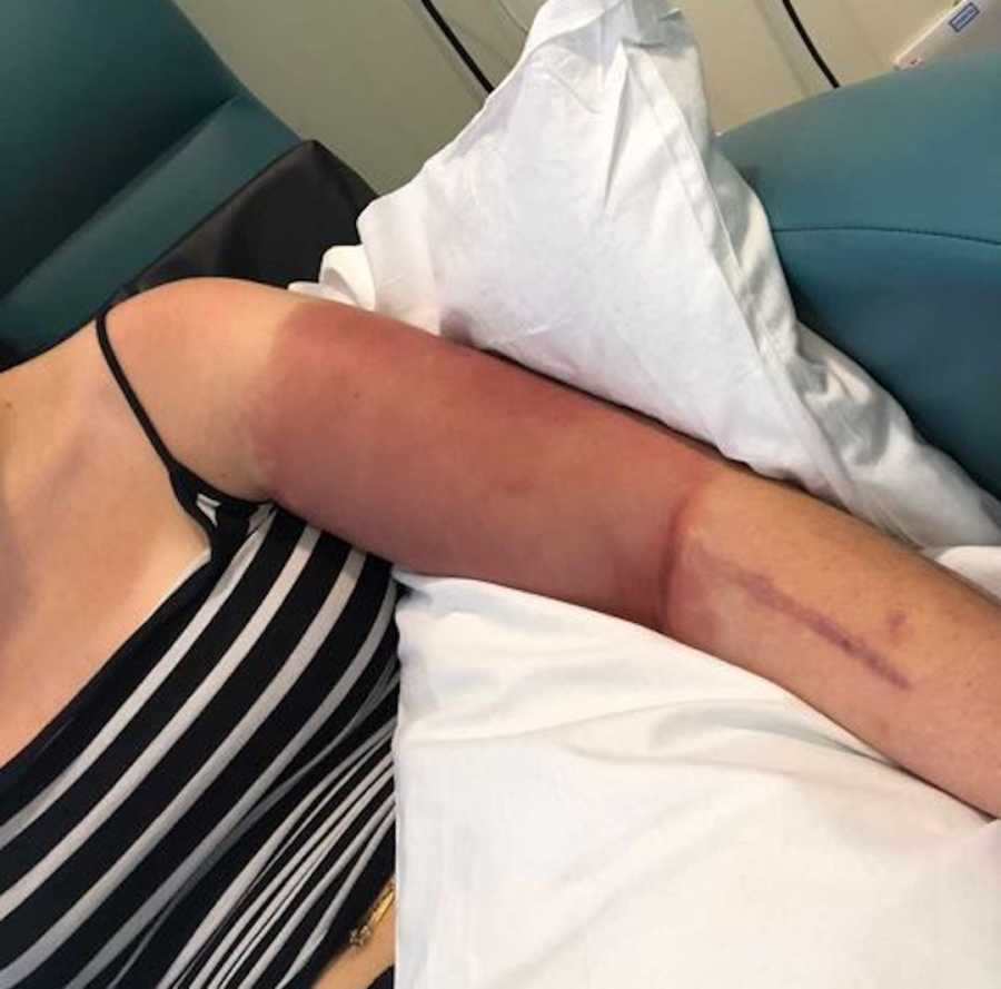 girl with bruising on arm