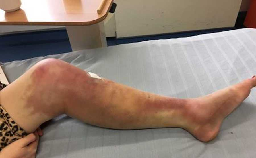 woman with severe bruising in her leg