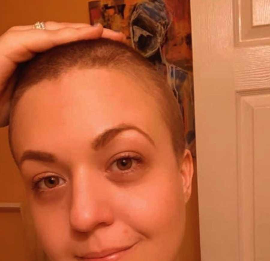 Woman showing chemo hair loss