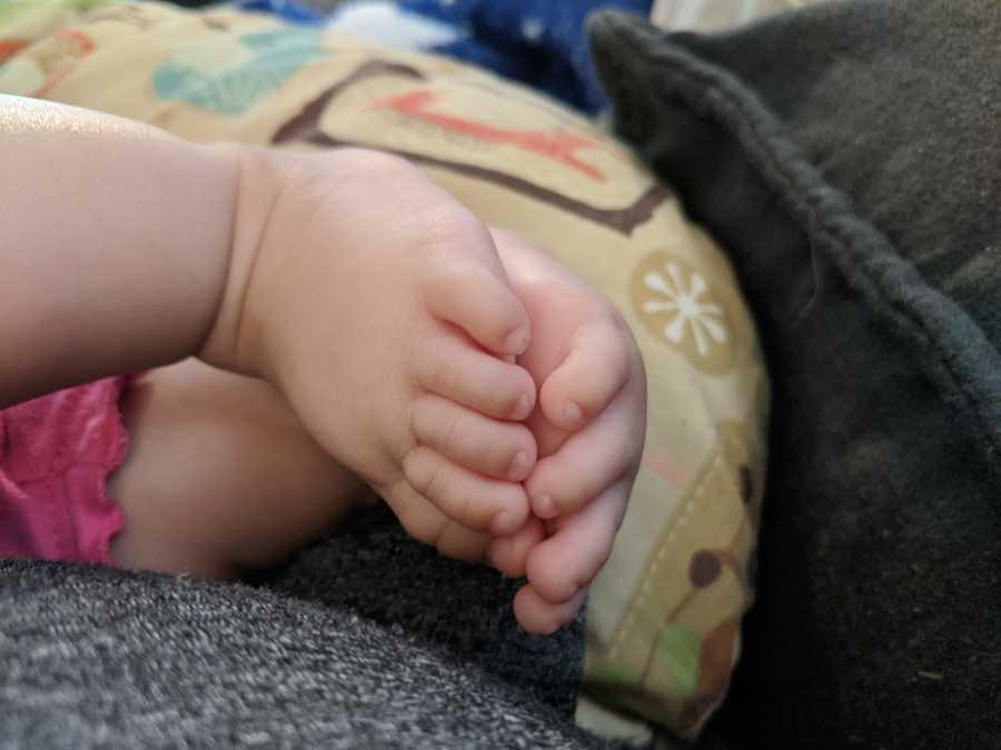 baby with rare deformity