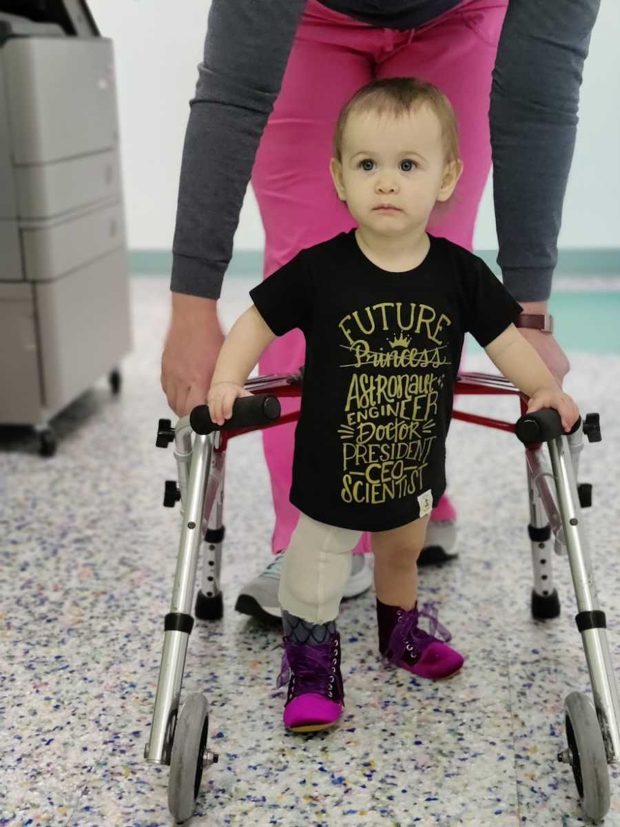 baby with rare condition learning to walk