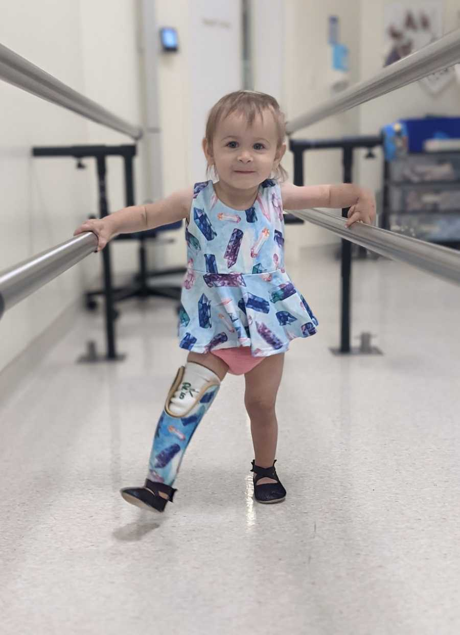 baby with prosthetic learning to walk
