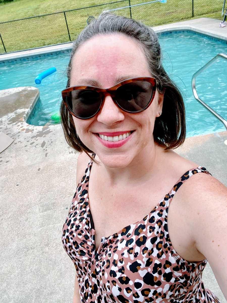 Mom takes bikini selfie near the pool, embracing her birthmark and signs of aging