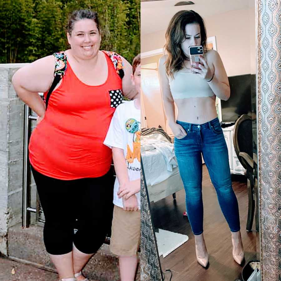Woman shows before and after photos of her body before and after a gastric bypass, changes to a healthy lifestyle