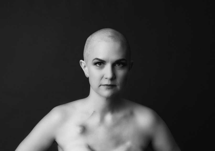 Woman battling breast cancer takes a beautiful black and white photo, showing off her strength