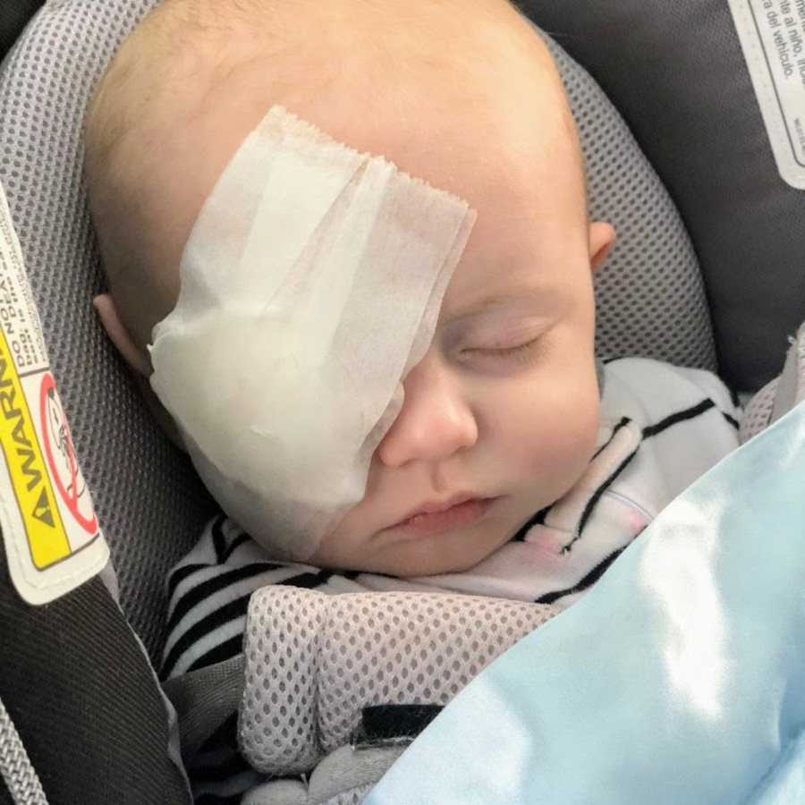 Baby boy after eye surgery in car seat