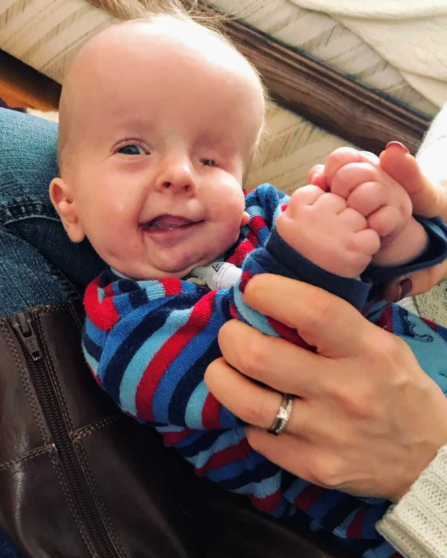 Baby boy with facial differences being held by parent