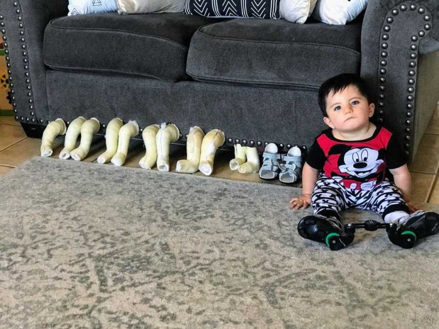 Baby boy posing with previous leg casts