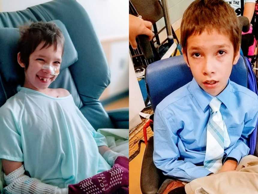 A boy sits in a hospital chair and a boy with a rare disorder sits in a shirt and tie in a wheelchair