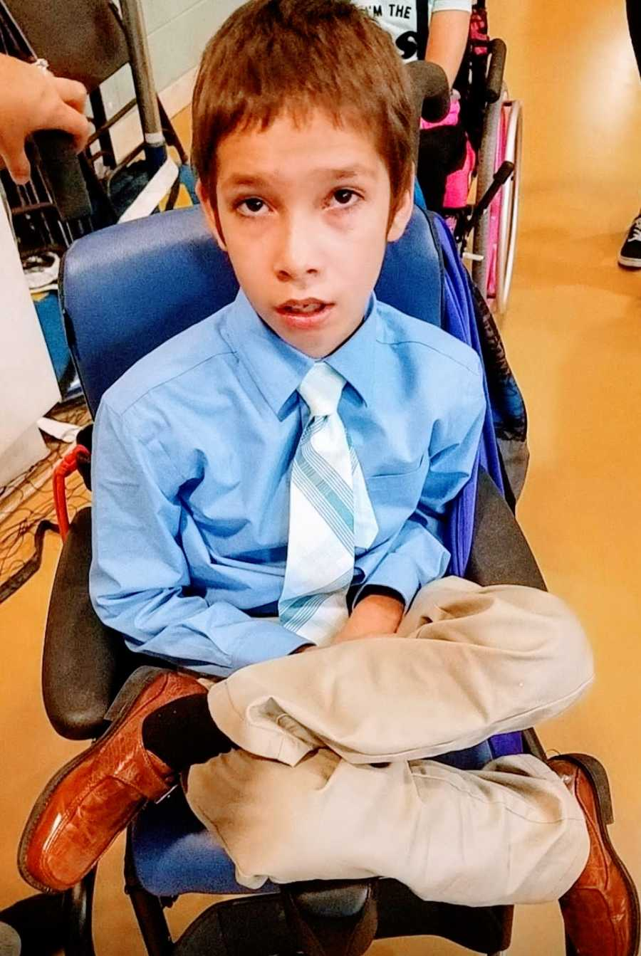 A boy with a rare chromosome disorder sitting in a wheelchair wearing a tie