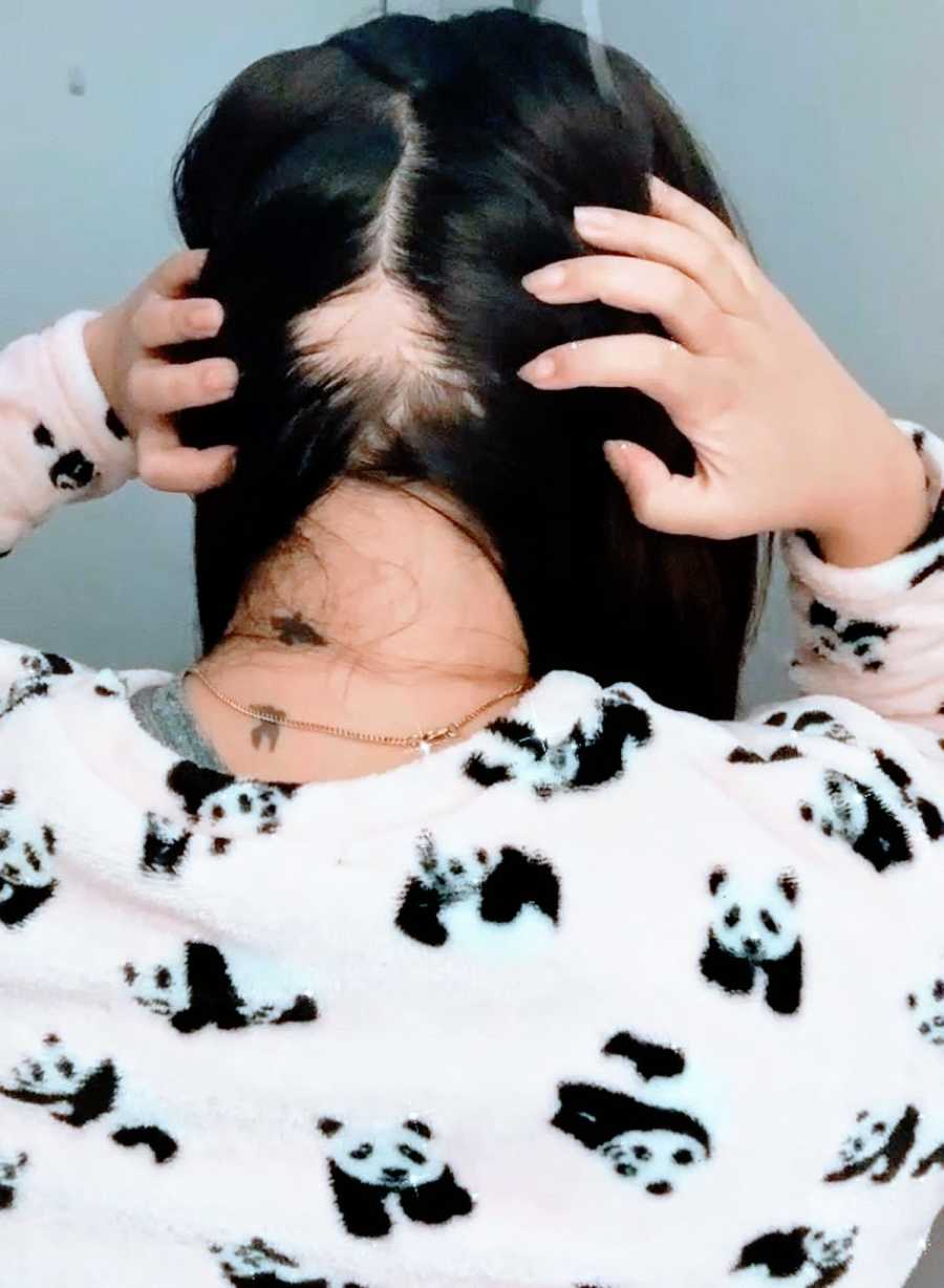 A woman with alopecia displays a large bald spot on the back of her head