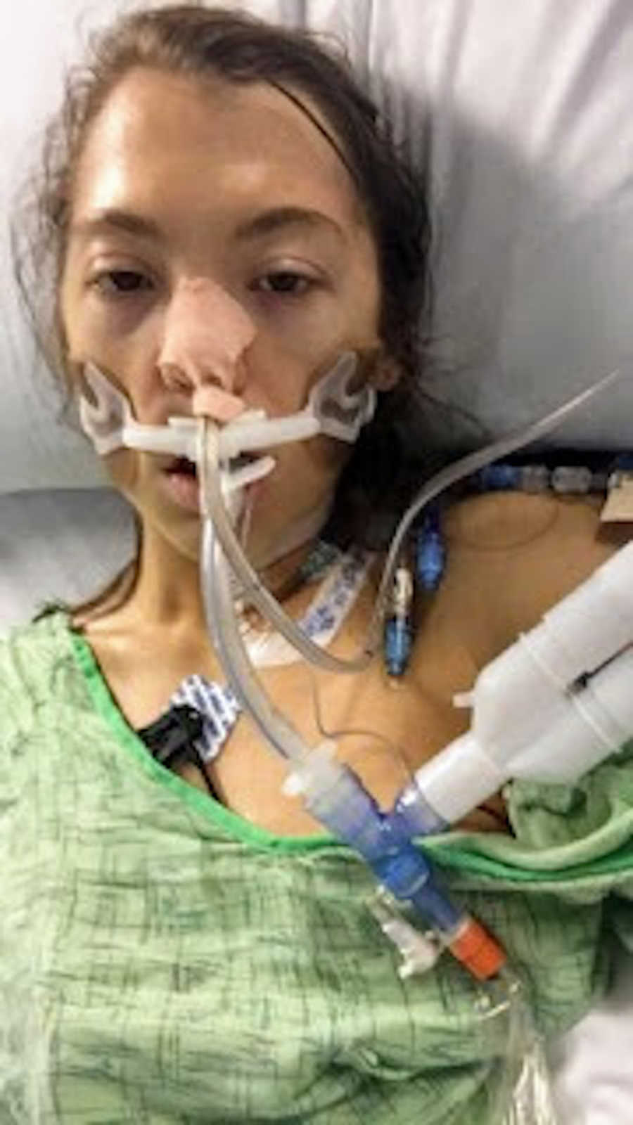 Woman on ventilator taking selfie after lung surgery