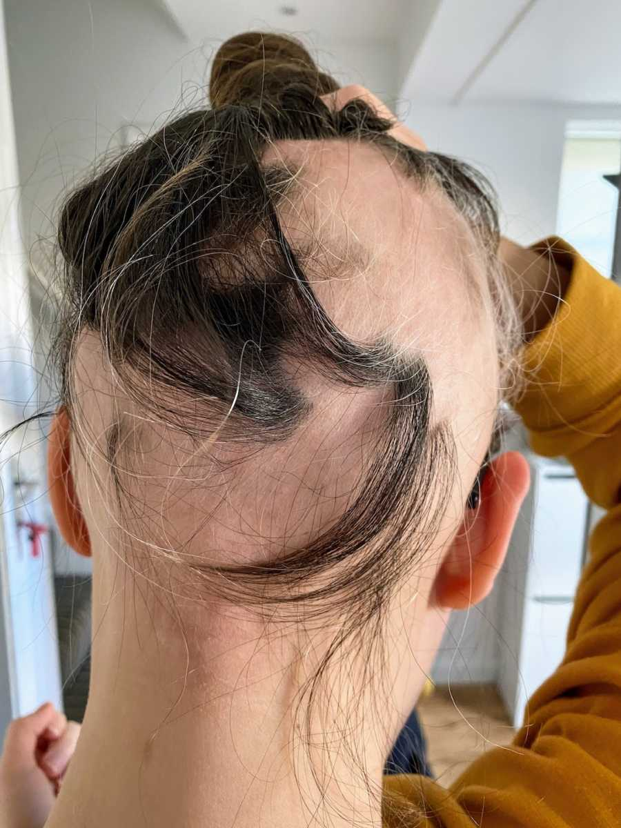 Woman showing bald patches on head due to alopecia