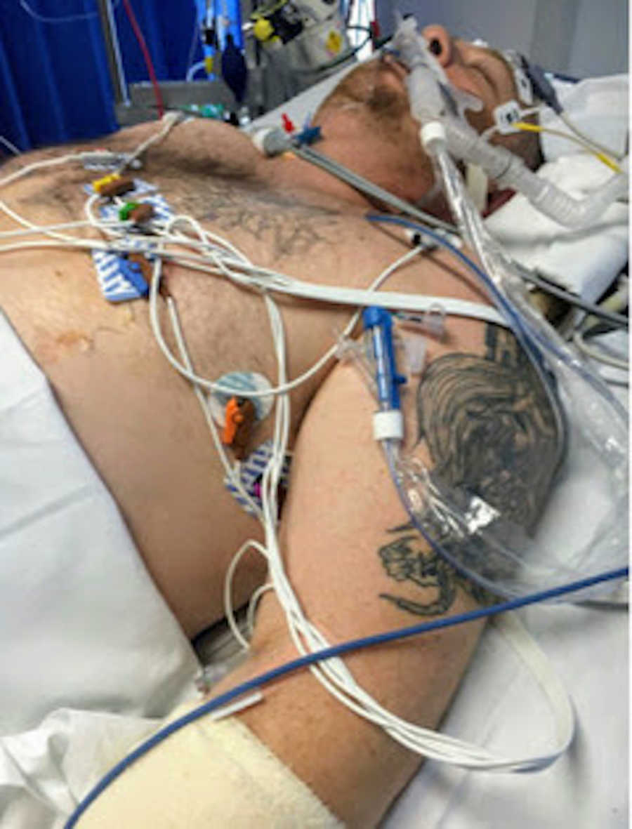 Man in hospital bed on ventilator covered in wires
