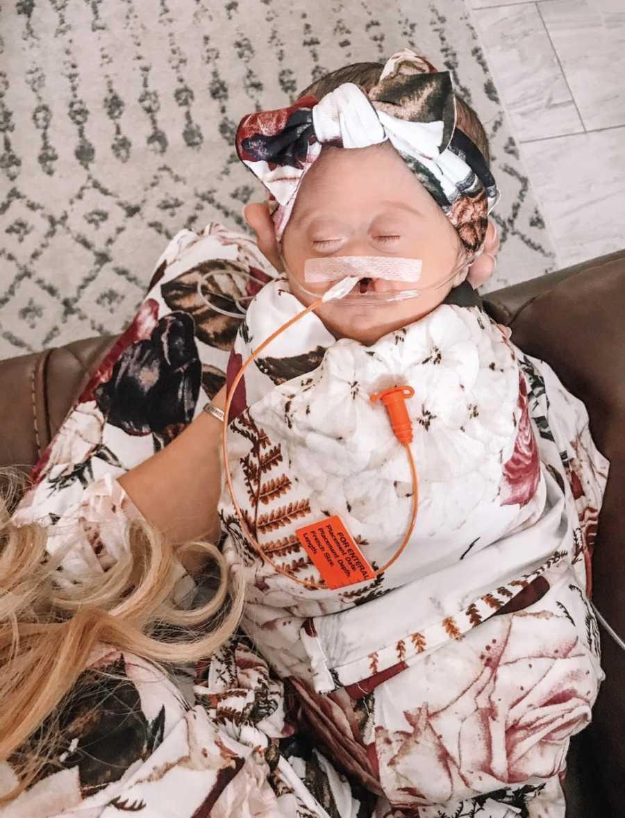 Mom snaps photos of her sweet, sleeping newborn with Alobar Holoprosencephaly