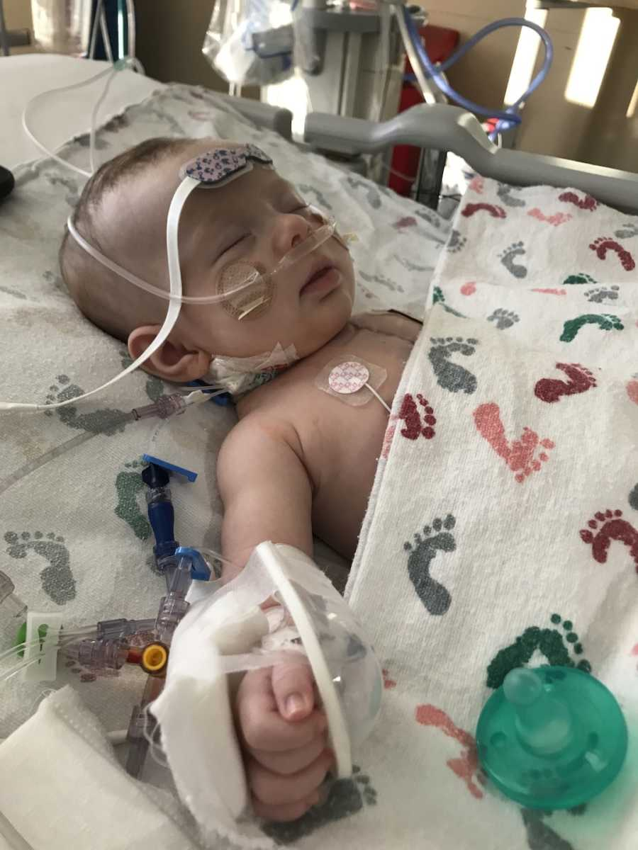baby hooked up to wires for EKG