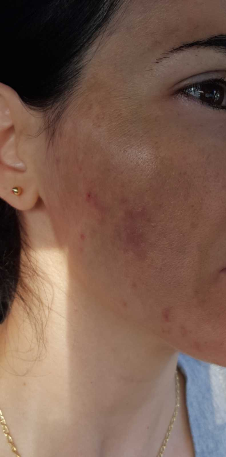 cystic acne on woman's face