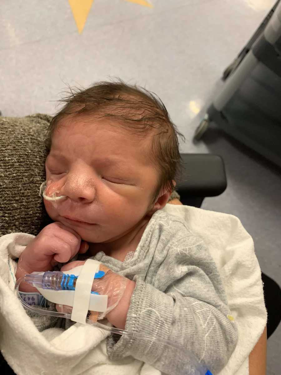 A little boy wearing a feeding tube
