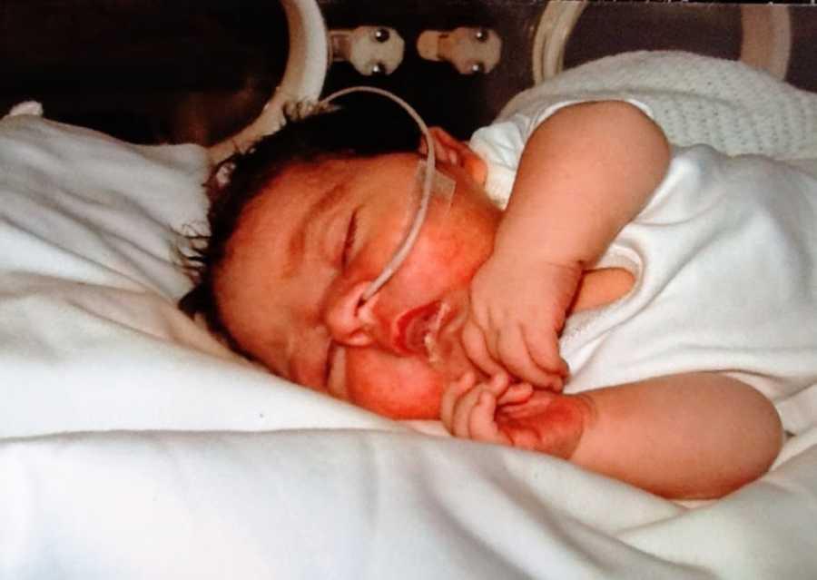 A baby girl wears a feeding tube