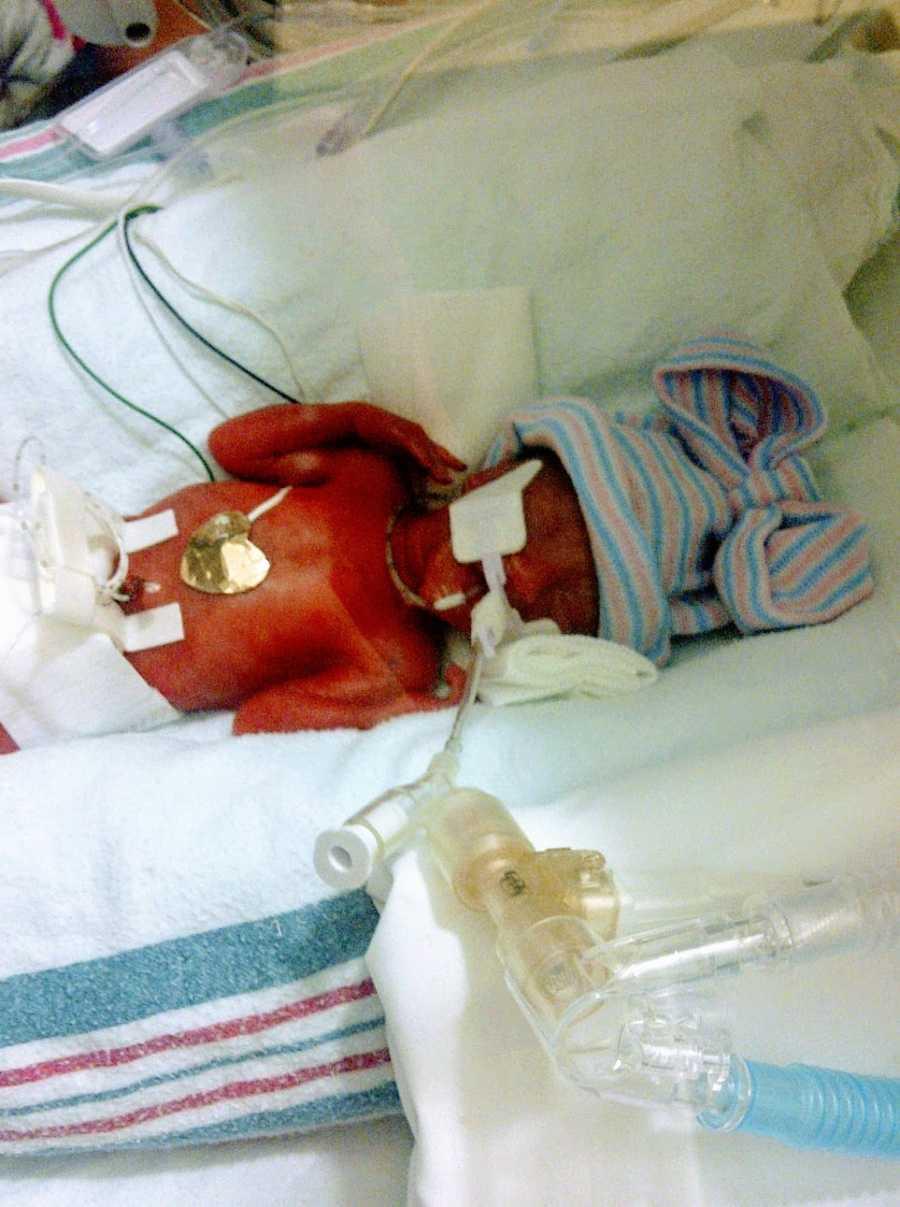 A preemie baby girl shortly after her birth