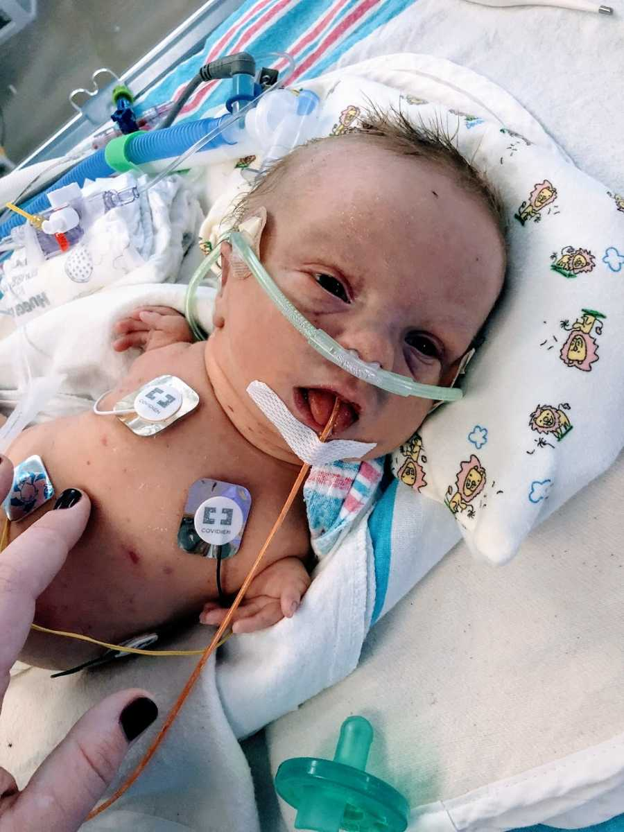 A baby boy with no arms lying in a hospital bed