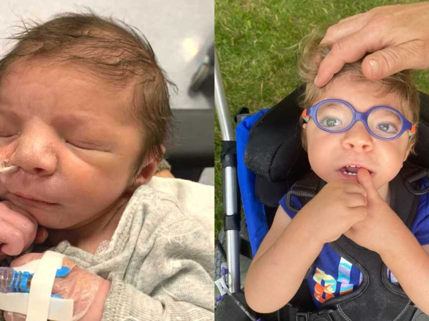 A boy with a feeding tube in and a boy wearing glasses sits in a stroller