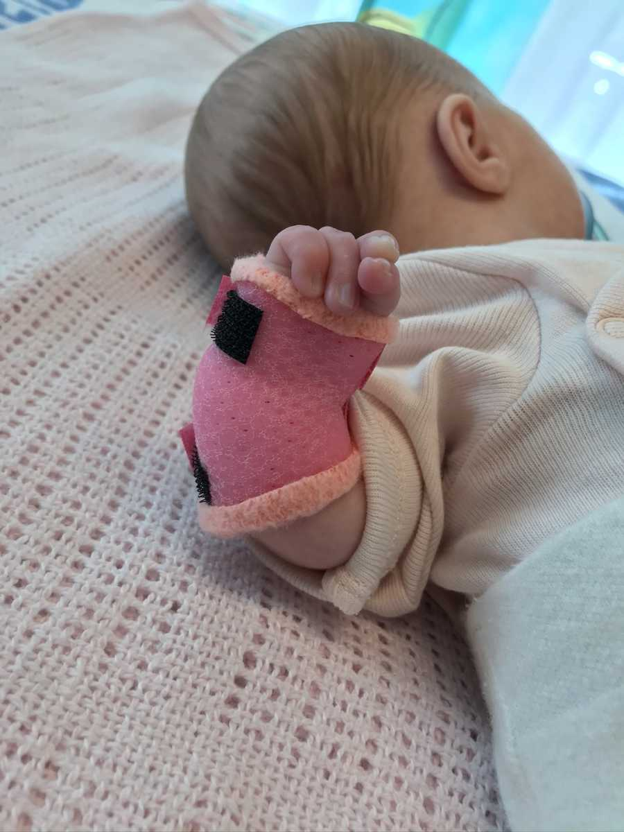baby with arm in a cast