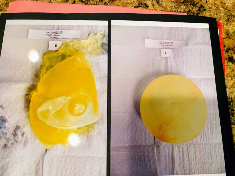Woman suffering from Breast Implant Illness shows the difference between her left and right implants, the right one ruptured and 'gummy'
