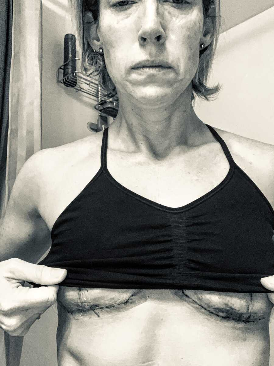 Woman recovering from emergency surgery due to Breast Implant Illness takes a photo of the scars and scar tissue under her breasts